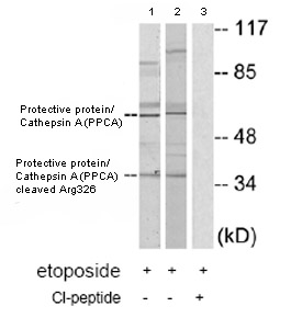 Western blot - Protective protein/Cathepsin A (PPCA) antibody (ab79590)
