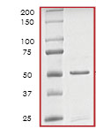 SDS-PAGE - ITK protein (Active) (ab79617)
