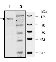 SDS-PAGE - PARP protein (Active) (ab79663)