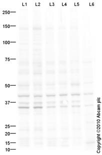 Western blot - CD86 antibody (ab79683)