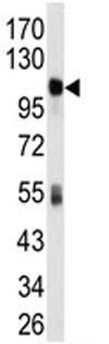 Western blot - ALDH1L1 antibody (ab79727)