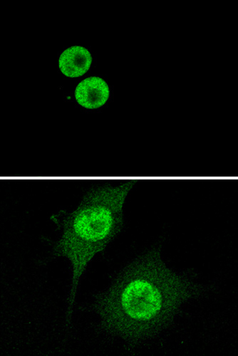 Immunocytochemistry/ Immunofluorescence - Anti-HMGB1 antibody [EPR3507] (ab79823)
