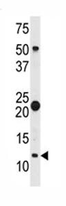 Western blot - S100A11 antibody (ab79845)