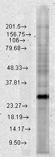Western blot - Rab4 antibody (ab79855)