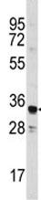Western blot - Annexin A3 antibody (ab79904)