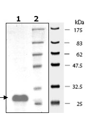 SDS-PAGE - Human Bcl-XL protein fragment (ab79944)