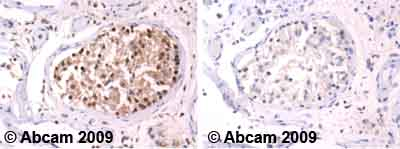 Immunohistochemistry (Formalin/PFA-fixed paraffin-embedded sections) - Ubiquitin antibody (ab8134)