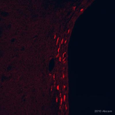 Immunohistochemistry (Formalin/PFA-fixed paraffin-embedded sections) - Anti-BrdU antibody [IIB5] - Proliferation Marker (ab8152)