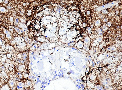 Immunohistochemistry (Formalin/PFA-fixed paraffin-embedded sections) - Anti-PGP9.5 antibody [13C4 / I3C4] - Neuronal Marker (ab8189)