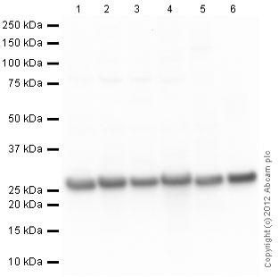 Western blot - Anti-PGP9.5 antibody [13C4 / I3C4] - Neuronal Marker (ab8189)