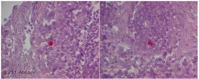 Immunohistochemistry (Formalin/PFA-fixed paraffin-embedded sections) - NCAM antibody [MEM-188] (ab8233)
