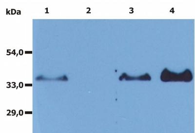 Western blot - CD20 antibody [MEM-97] (ab8237)