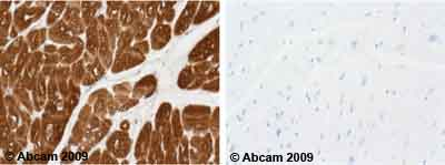 Immunohistochemistry (Formalin/PFA-fixed paraffin-embedded sections) - Cardiac Troponin T antibody [1C11] (ab8295)