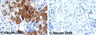 Immunohistochemistry (Formalin/PFA-fixed paraffin-embedded sections)-Alcohol Dehydrogenase antibody [1E5](ab8335)