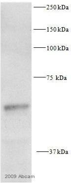 Western blot - pan-AKT antibody (ab8805)