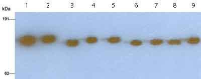 Western blot - Factor H antibody (ab8842)