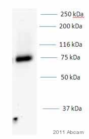 Western blot - Anti-p75 NGF Receptor antibody (ab8874)