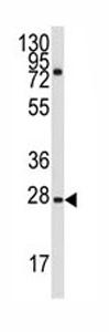 Western blot - GRB2 antibody - N-terminal (ab80065)
