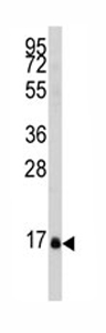 Western blot - DUSP21 antibody (ab80100)