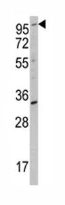 Western blot - ROR2 antibody (ab80174)