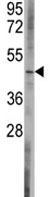 Western blot - Bcl rambo antibody - C-terminal (ab80185)