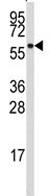 Western blot - ALDH4A1 antibody (ab80188)
