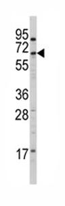 Western blot - CYP4X1 antibody - N-terminal (ab80219)
