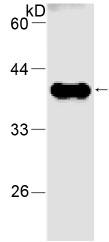 Western blot - Nucleoside phosphorylase antibody [11] (ab80225)