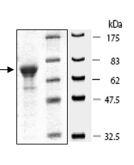 SDS-PAGE - KMT4 / Dot1L protein (Tagged) (ab80254)