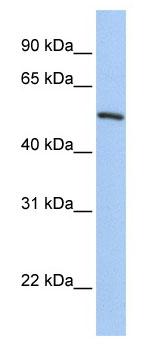 Western blot - FKLF / KLF11 antibody (ab80269)