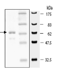 SDS-PAGE - HDAC11 protein (Active) (ab80281)