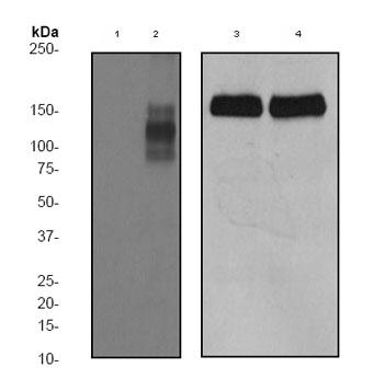 Western blot - Nephrin (phospho Y1176 + Y1193) antibody [EPTPG1] (ab80299)