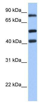 Western blot - Host cell factor C2 antibody (ab80306)