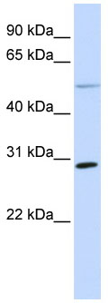 Western blot - MFAP4 antibody (ab80319)