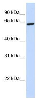 Western blot - SUHW2 antibody (ab80328)