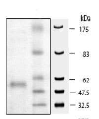 SDS-PAGE - HDAC9 protein (Active) (ab80350)