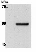 Western blot - Glucose 6 Phosphate Dehydrogenase antibody (ab80362)