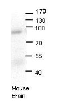 Western blot - Anti-LSS antibody (ab80364)
