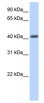 Western blot - LRRC2 antibody (ab80399)