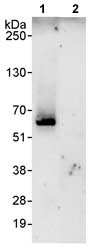 Immunoprecipitation - CROP antibody (ab80412)