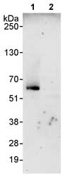 Immunoprecipitation - CROP antibody (ab80415)