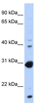 Western blot - NR0B2 antibody (ab80417)