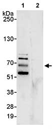 Immunoprecipitation - MARVELD2 antibody (ab80421)
