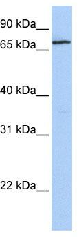 Western blot - ZNF548 antibody (ab80426)