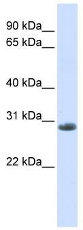 Western blot - YIPF6 antibody (ab80442)