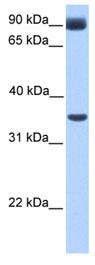 Western blot - CBF1 interacting corepressor antibody (ab80451)