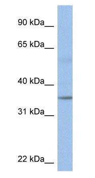 Western blot - KCTD4 antibody (ab80457)