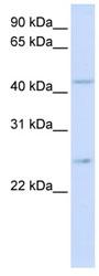 Western blot - SLC37A4 antibody (ab80463)