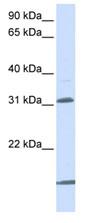 Western blot - SLC25A11 antibody (ab80464)
