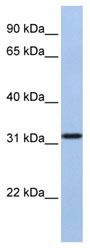 Western blot - SLC25A28 antibody (ab80467)